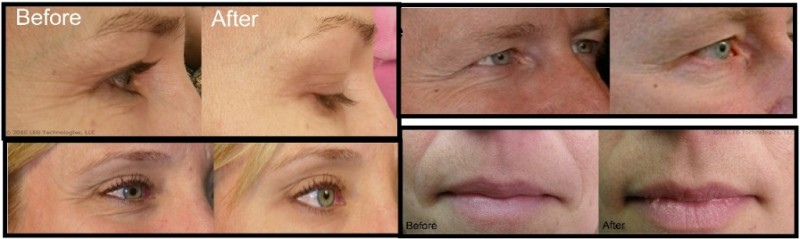 DPL-Therapy-System-Before-and-After1-1024x306